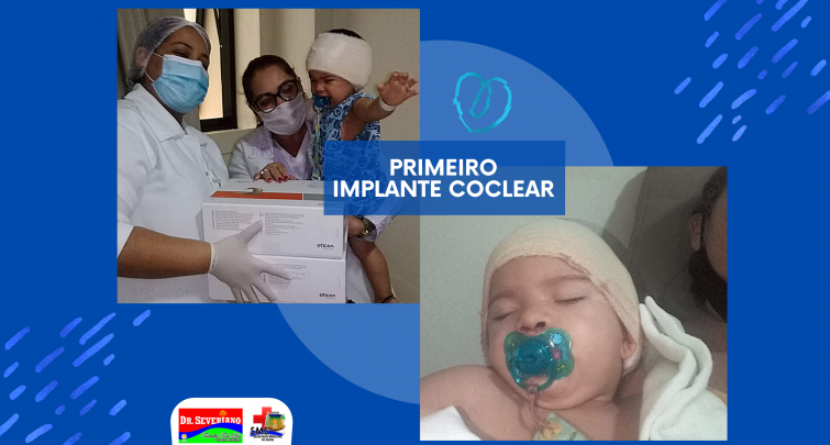 PRIMEIRO IMPLANTE COCLEAR EM UM PACIENTE DE DOUTOR SEVERIANO/RN.